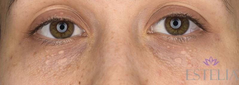 oko-przed